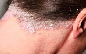 scalp psoriasis treatment and causes
