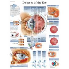 Eye Diseases Chart Diseases Of The Eye Chart