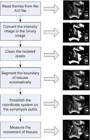 Ultrasound Intensity Chart Flow Chart Of Ultrasound Image Analysis Download