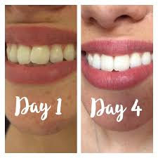 beauty tip teeth whitening with charcoal