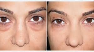 laser treatment for dark circles how it use duration