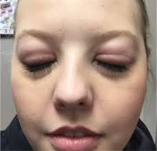 Allergic Reactions to Eyelash Extensions | Lash Tavern