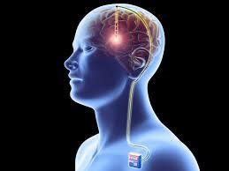 Image result for parkinson epilepsy