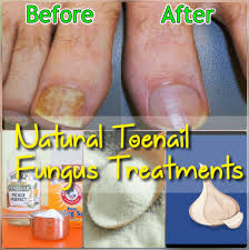 best home remes to get rid of toenail fungus fast