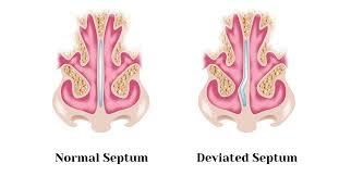 deviated septum alabama nasal and
