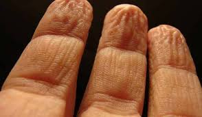 Image result for Why Do Our Fingers and Toes Wrinkle During a Bath?