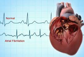free images bad rhythm heart साठी इमेज परिणाम