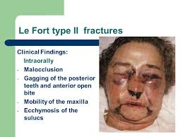 Le Fort Fracture Midface Fractures Ppt Video Online Download