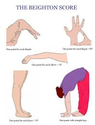 Image result for Ehlers-Danlos syndrome