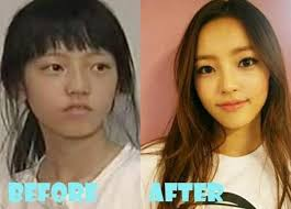 tzuyu before and after plastic surgery celebshistory
