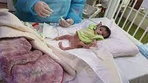 الربيعة: عملية فصل التوأم الطفيلي اليمني تسير أسرع من الخطة الموضوعة