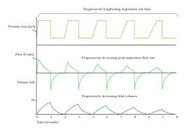 Ards Tidal Volume Chart Inspiratory Pause I E Ratio And Inspiratory Rise Time
