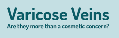Varicose Veins Are They More Than A Cosmetic Concern The