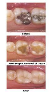 dental onlay dental onlays rancho cucamonga dentist rancho cucamonga alta loma