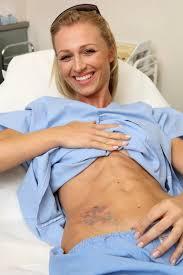 Odstranění Tetování Rubínovým Laserem Klinika Esthesia Praha