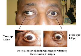 How Do Eyes React To Light Ucsds Practical Guide To Clinical Medicine