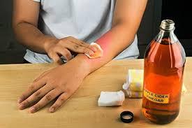 exposing the scam  health benefits of apple cider vinegarw  treating arm   apple cider vinegar