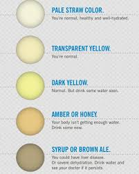 Baby Pee Color Chart Pictures Of Normal Baby Poop Breastfed