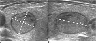 Image result for thyroid nodules on ultrasound imaging