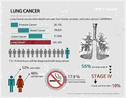 Stage 4 Lung Cancer Survival Rate Summary Lung Cancer Causes Stages Life Expectancy And More