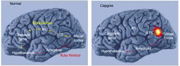 Resultado de imagen para prosopagnosia cerebro