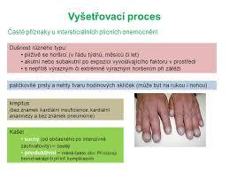 Intersticiální Plicní Procesy Ladislav Lacina Google Images Ppt