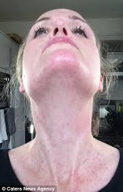 The mother who could be KILLED by cold weather: Allergic reaction ...