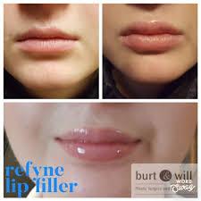 lip augmentation burt will plastic