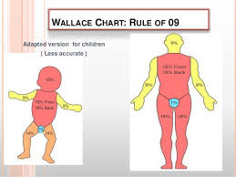 Rule Of 9 S For Burns Chart Burn Injury Typess Classification Causes Assesment And Managment