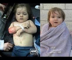 اطفال سوريا ان كان لديكم قلب فدخلوووووا images?q=tbn:ANd9GcT