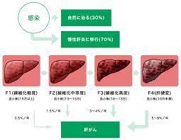 肝臓 病気