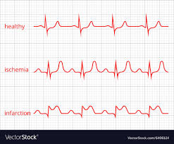 Heart Beat Chart Heart Cardiogram Charts Set Healthy Heart