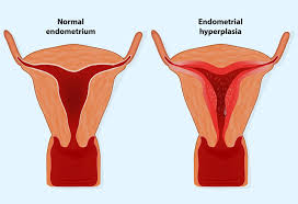 Endometrial Thickness Whats The Normal Range For Conceiving