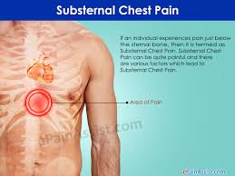 sharp pain in chest. what are some of the associated symptoms along with substernal chest pain? sharp pain in o
