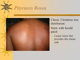 82 Pityriasis Rosea  Classic Christmas tree distribution  Starts with  herald patch Larger lesion that precedes this classic rash