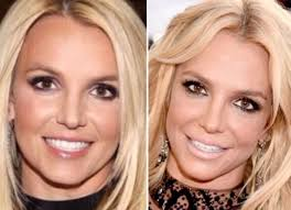lip fillers cosmetic expert warns