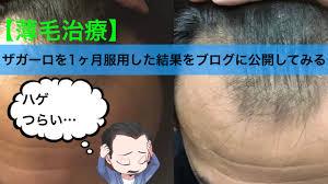 薄毛治療ザガーロを1ヶ月服用した結果をブログに公開してみる若ハゲ