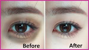 if you ve got tried in vain to apply over the counter creams for decreasing the appearance of dark circles you may need to recall the option of surgical