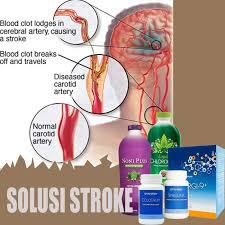 Hasil gambar untuk obat stroke herbal paling ampuh
