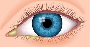 Eye Discharge - Causes, Types, Treatment