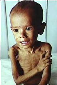 starving american child. Modren Child Feed My Starving Children Intended American Child T