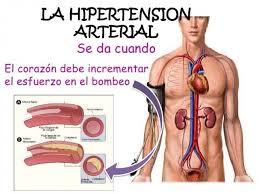 Resultado de imagen para Remedios naturales para la hipertensión o presión arterial alta