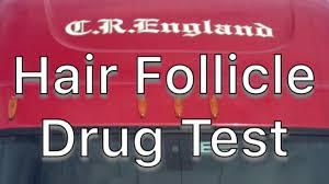 cr england s hair follicle test