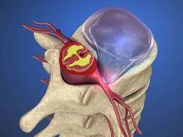 herniated disc surgery