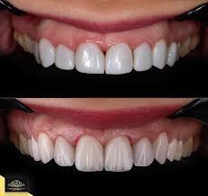 Gps Smile Design
