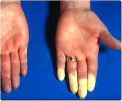 raynaud s syndrome signs and symptoms