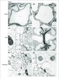 Transmission Electron Microscopy Images Of Non And Nematode