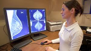 Young Women s Breast Cancer Blog UK  About the blog Healthline