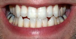 today i found out that baking soda makes a good teeth whitener specifically it works by breaking down stains in your teeth caused by such things as dark