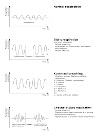 Cheyne Stokes Breathing Pattern